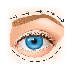Augenfarbe ändern - blaue Augen lasern lassen