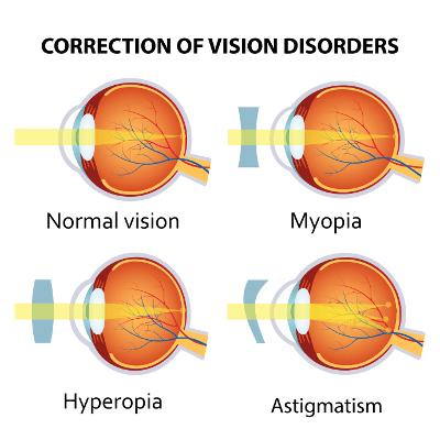 Augenlasern im Ausland - Augenklinik