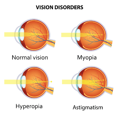 Augenlasern in Bremen - Augenklinik