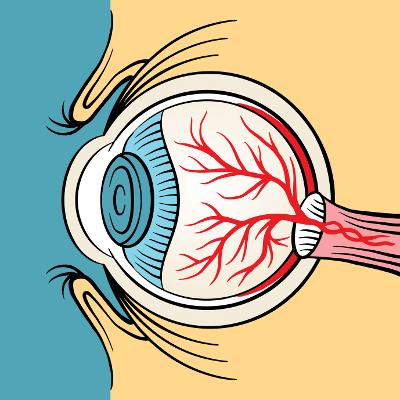 Augenlasern Erfahrungen - Testberichte