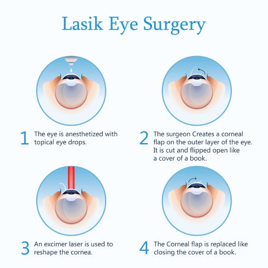 Augenlasern Erfahrungsberichte