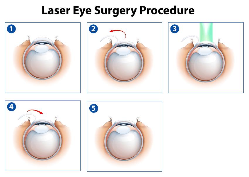 Augenlasern in Hamburg - Augenklinik