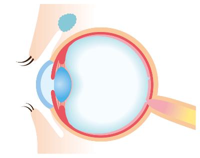 Augenlasern in Heidelberg - Augenklinik