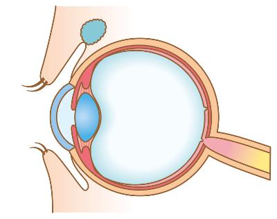 Augenlasern in Linz - Augenklinik