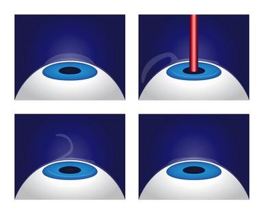 Augenlasern Methoden: Was sind die besten Verfahren?