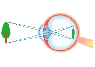 Augenlasern in Österreich - Augenklinik