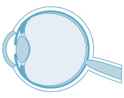 Augenlasern in Sankt Gallen - Augenklinik