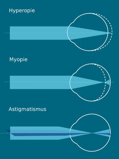 Augenlasern in Stuttgart - Augenklinik