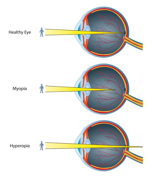 Augenlasern bei Weitsichtigkeit und Kurzsichtigkeit