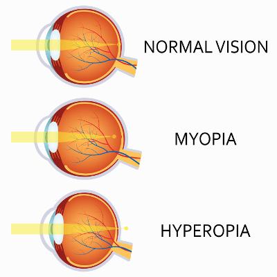 Weitsichtig (Hyperopie) und Kurzsichtig (Myopie) lasern lassen